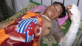 12 dead, 8 injured in traffic accident near Laos border