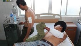 3 nhân viên bảo vệ rừng bị chém phải nhập viện