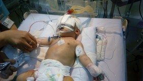 Neonate stabbed in head with knife temporarily saved