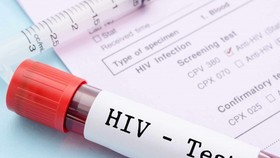New strategy needed to improve HIV treatment quality