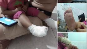 Tạm đình chỉ cơ sở giữ trẻ khiến bé gái 18 tháng tuổi phỏng nước sôi