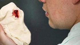 24% bệnh nhân lao kháng thuốc và kháng đa thuốc