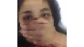 Bác sĩ bị tố gạ tình, đánh đập nữ sinh thực tập đã xin nghỉ việc