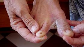 Phòng chống các bệnh về da thường gặp trong mùa mưa