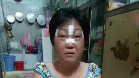蔡玉蘭病情反覆發作,導致頭劇痛、眼睛紅腫、血壓下降。