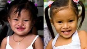 一名唇顎裂女童接受唇顎裂修補手術前後。(示意圖源:市醫藥大學)