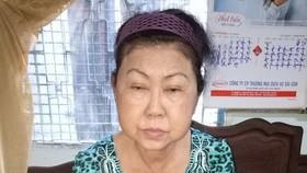 近期,陳銀兒的臉部開始浮腫。