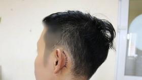 接受手術後的傷者。(圖源:院方提供)