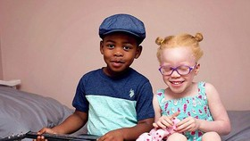 黑皮膚的男嬰卡姆西和白皮膚的女嬰卡奇。(圖源:CNA)