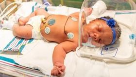 美國女嬰在9月11日晚上9時11分出生,重9磅11安士,三重巧合令父母和醫護人員相當驚訝。(圖源:互聯網)
