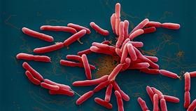 引發惠特莫爾氏病的類鼻疽伯克氏菌(Burkholderia pseudomallei)。(圖源:互聯網)