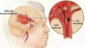 Mối liên hệ tăng huyết áp và đột quỵ