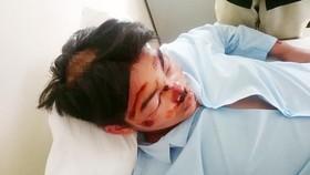 Em T. đang điều trị tại bệnh viện.