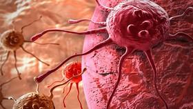 Thiết bị lai sinh học có thể giúp chẩn đoán sớm ung thư và bệnh lao. Ảnh: SPUTNIKNEWS. COM