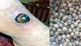Hạt đậu Lào biến thành… thần dược