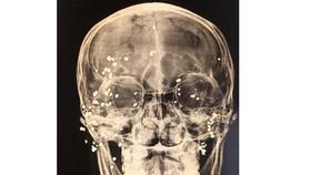 Phẫu thuật nạn nhân lấy 39 viên đạn hoa cải