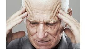 """Sử dụng tùy tiện phương án """"tăng cường tuần hoàn não"""" cũng có thể gây ra sự thay đổi huyết áp lên thành mạch máu não"""
