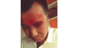 Ông Thiện bị nhóm người lạ đánh trọng thương tại  trụ sở Công ty cổ phần Đầu tư Thương mại và Dịch vụ Việt Úc