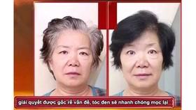 Tóc bạc 10 năm biến thành tóc đen, trị tóc bạc tận gốc, giúp tóc đen mọc trở lại!