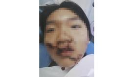 Khuôn mặt biến dạng của bé T.,