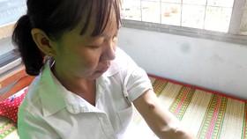 Cô giáo suy kiệt sau 8 năm chạy thận