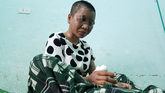 Chủ tịch tỉnh Gia Lai chỉ đạo điều tra vụ người làm thuê bị chủ hành hung dã man