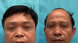 鄉黨委副書記、人民議會主席阮文良(左)和福城鄉醫療站長范鴻藍。(圖源:陳鋒)