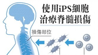 日本批准試驗iPS 細胞治癱瘓,將創全球首例。(圖源:日經新聞)