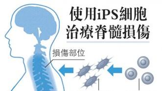 日本批准試驗iPS 細胞治癱瘓,將創全球首例。(圖源:日經新聞)