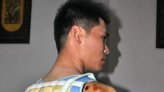 Anh Mậu bị đánh trọng thương ở lưng và vai. Ảnh CÔNG HOAN.
