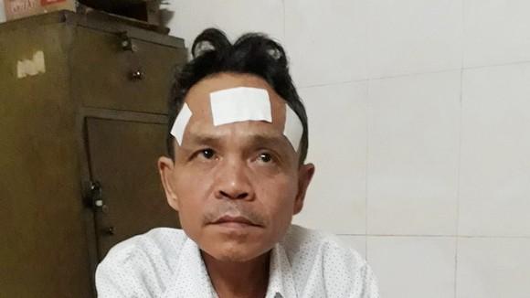 劉偉超目前還經常頭暈頭痛。