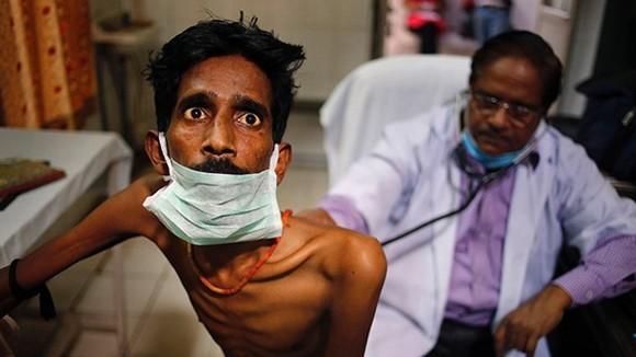 Tình trạng bệnh lao kháng đa thuốc hiện đã được xác nhận tại ít nhất 117 quốc gia và vùng lãnh thổ trên thế giới. Ảnh: AP