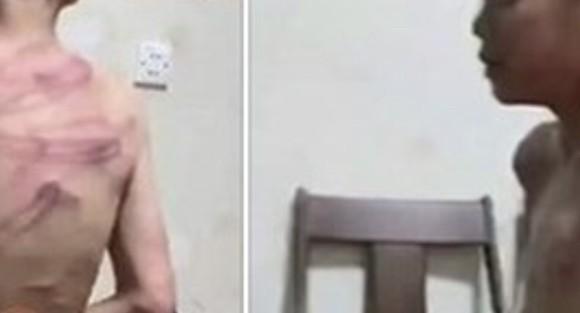 Hình ảnh cháu bé bị đánh lan truyền trên mạng xã hội. Ảnh: Facebook