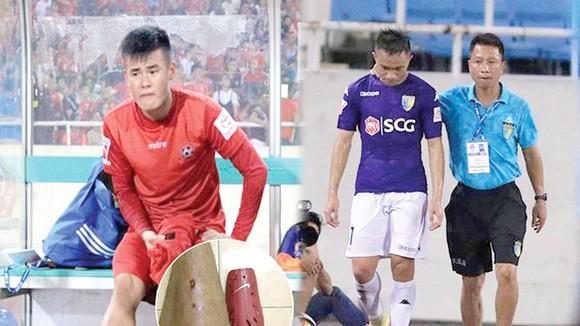 """Tiền vệ Anh Hùng (trái) rất đau đớn sau pha """"triệt hạ"""" của Sầm Ngọc Đức. Ảnh: CTV"""