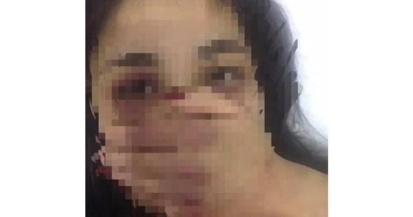 Bác sĩ bị tố gạ tình, đánh đập nữ điều dưỡng đã xin nghỉ việc