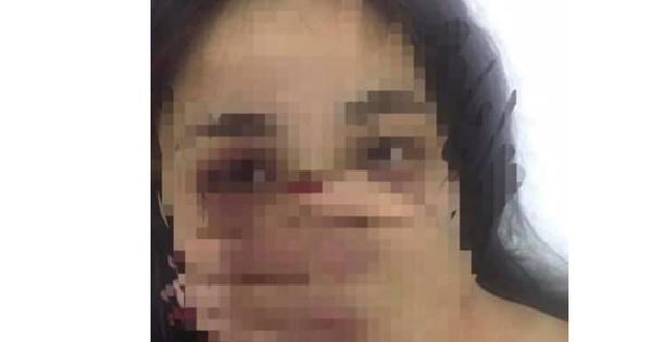 Xác minh vụ việc nữ sinh thực tập bị bác sĩ gạ tình, đánh đập xôn xao Facebook