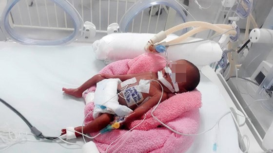 Cứu sống bé gái sinh non nặng 600g mắc bệnh tim bẩm sinh ảnh 1