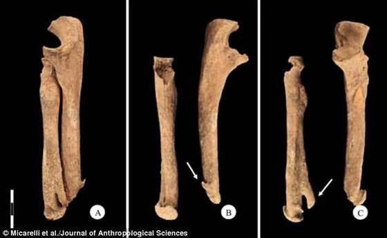 考古發現武士骸骨:截肢後用刀做假肢 ảnh 1