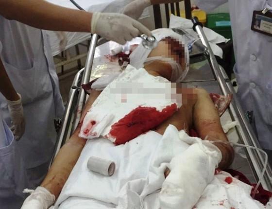 Làm rõ vụ trọng án trạm trưởng y tế tại Sóc Sơn chém chết người rồi tự sát ảnh 2