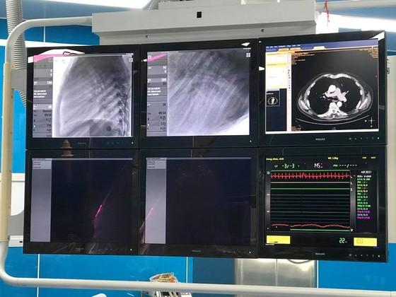 4 trẻ dị tật tim được can thiệp bằng DSA ảnh 3