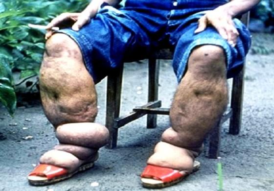 Tổ chức Y tế thế giới công nhận Việt Nam loại trừ được thêm một bệnh truyền nhiễm nguy hiểm ảnh 2