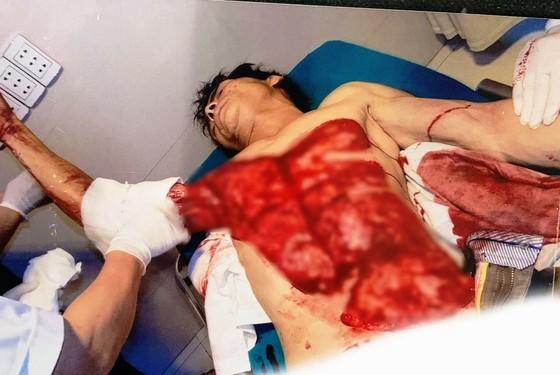 Cấp cứu thành công một công nhân bị lột da  khi ngã vào máy bóc gỗ  ảnh 1