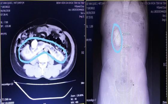 """Phẫu thuật lấy sỏi thận """"khủng"""" trên bệnh nhân bị thận móng ngựa hiếm gặp ảnh 2"""