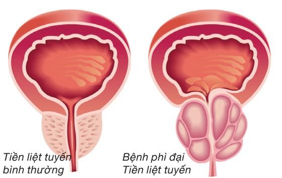 Bí kíp Dứt điểm phì đại tiền liệt tuyến không cần phẫu thuật ảnh 1