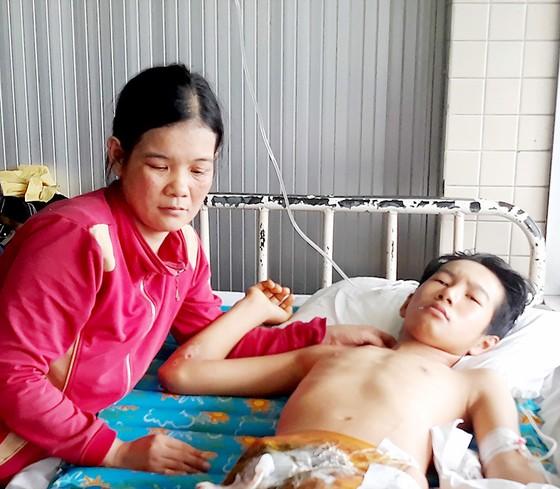 16 tuổi làm thuê kiếm sống, bị tai nạn mất một chân ảnh 1