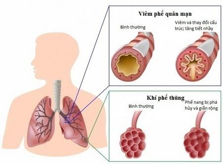 Phòng ngừa bệnh phổi tắc nghẽn mạn tính ảnh 1