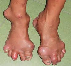 Một số bệnh thường gặp ở người cao tuổi và biện pháp phòng bệnh ảnh 5