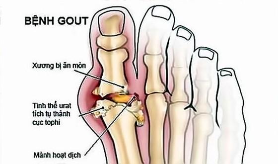 Nguy cơ lạm dụng Corticoid điều trị bệnh xương khớp ảnh 2