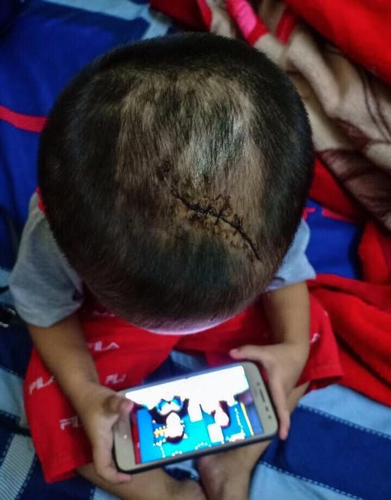 Bé trai 3 tuổi ở Bình Dương nghi bị mẹ ruột và cha dượng bạo hành ảnh 2