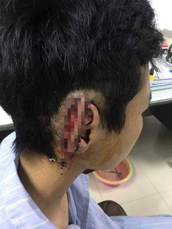 Học sinh bất ngờ bị bạn cùng trường cắn đứt và nhai nuốt vành tai  ảnh 1